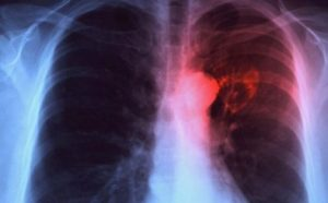 Tuberculosis image